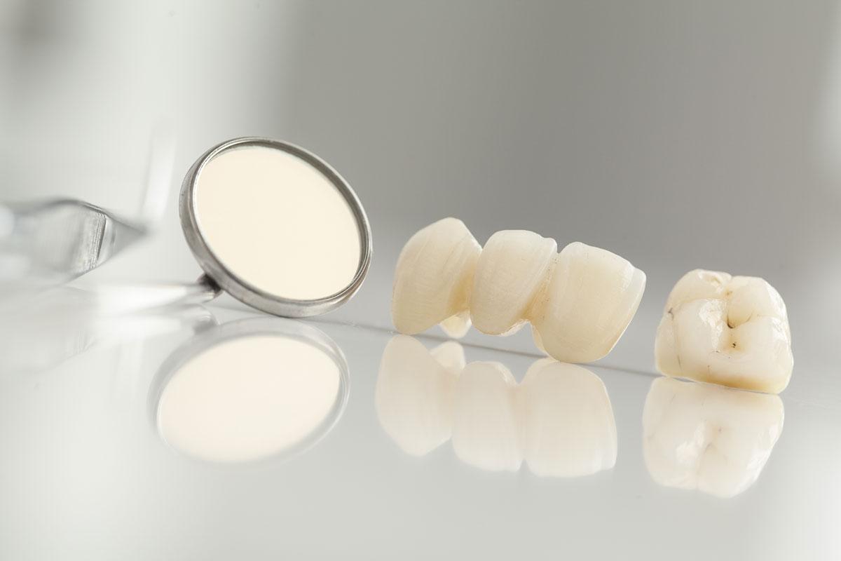 Bild Zahnersatz